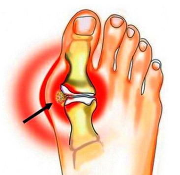 teencorrectie - hallux valgus - bobbel binnenkant voet